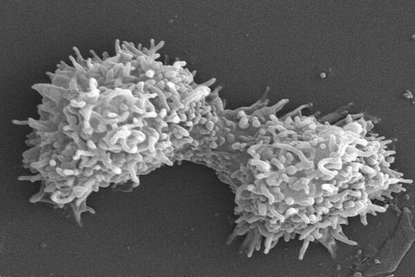 Forma de reproduccion de un organismo protista